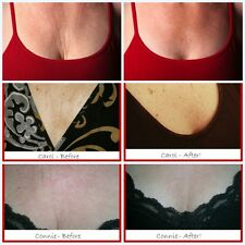 Silcskin Decollette Pad Chest Wrinkles Prevention Anti Aging Reduce Remove Skin
