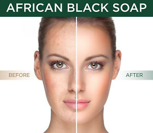 African Black Soap All Natural Best Acne Scar Blemish Blackhead Treatment Cure