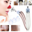 Electric-Facial-Ance-Blackhead-Removal-Pore-Cleaner-Vacuum-Suction-Skin-Care thumbnail 1