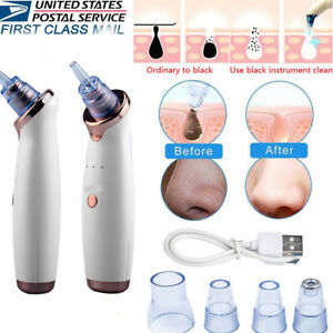 Electric-Facial-Skin-Care-Pore-Blackhead-Cleaner-Remover-Vacuum-Acne-Cleanser-US