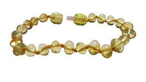 Bernstein-Armband-Kinder-Baby-Armband-Fusskettchen-Bernsteinarmband-Art-Nr-4382-1