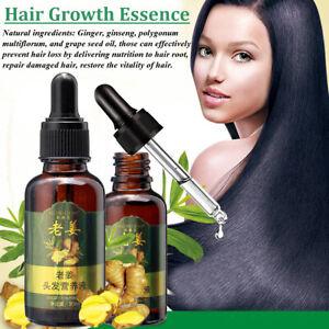 Pousse-cheveux-Huile-Gingembre-Essentielle-Traitement-Anti-chute-Serum-unisexe