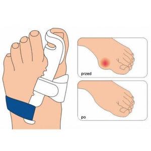 Hallux-Valgus-grandes-pies-cuidado-hueso-del-dedo-del-pie-juanete-tablilla-Corrector-Ortopedico