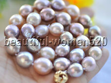 Z8472 AAA Lustre 16mm Almost-Round Lavender Pink Edison KESHI PEARL NECKLACE 17i