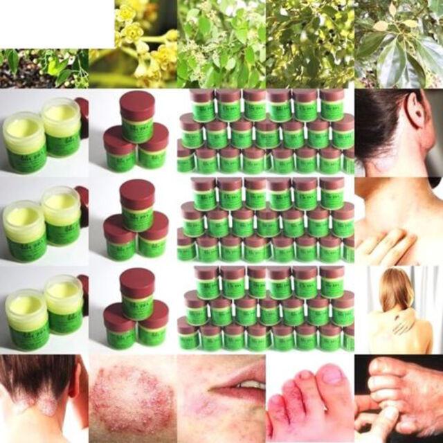 Cure Psoriasis Ointment Ringworm Cream Tinea Stubborn Psoriasis Dermatitis ly