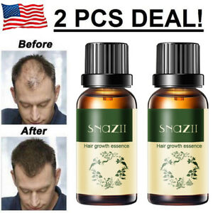6373d883b5c 2x Hair Growth Products For Men Women Natural Oil Serum Loss Grow ...