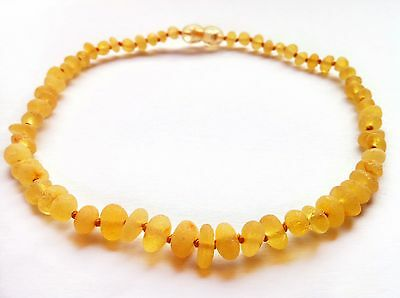 Raw Baltic Amber Baby Teething Necklace Genuine Unpolished Honey colour