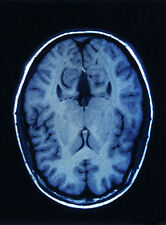 Framed Print - MRI of the Human Brain (Picture Poster Art Medical Anatomy)