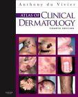 Atlas of Clinical Dermatology, 4e by Anthony du Vivier (Hardback, 2012)