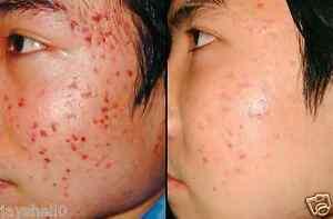 2-Best-Prodotti-trattamento-dell-039-acne-ACIDO-IALURONICO-CREMA-amp-Micro