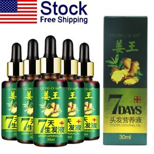 Regrow-7-Day-Ginger-Hair-Growth-Serum-Hairdressing-Oil-Germinal-Loss-Treatment