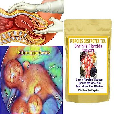 Fibroids killer, fibroids Shrink tea, hormonal balance tea, Fibroids  destroyer | eBay