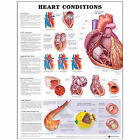 Heart Conditions by Anatomical Chart Co. (Fold-out book or chart, 2004)