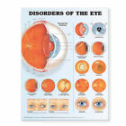 Disorders of the Eye Anatomical Chart by Anatomical Chart Co. (Fold-out book or chart, 2006)