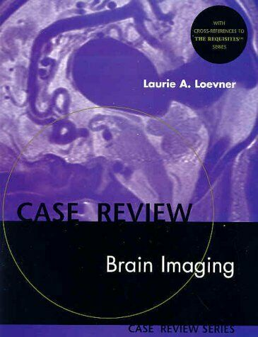 Brain Imaging by Loevner, Laurie A.
