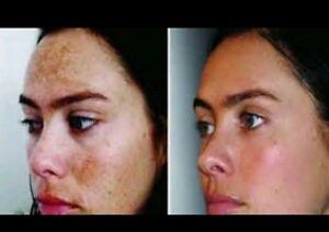 Details about Age Spots Brown Dark Spot, Acne, Blemishes moisturizeCream  Face Skin Lightening