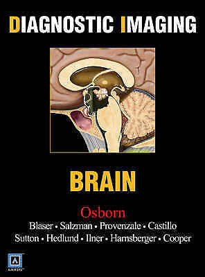Brain by Osborn, Anne G. -ExLibrary