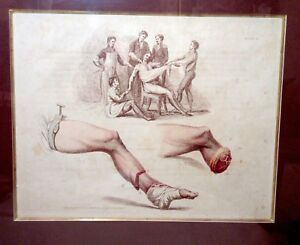 rare-antique-1820-hand-painted-amputation-medical-doctor-engraving-print-etching