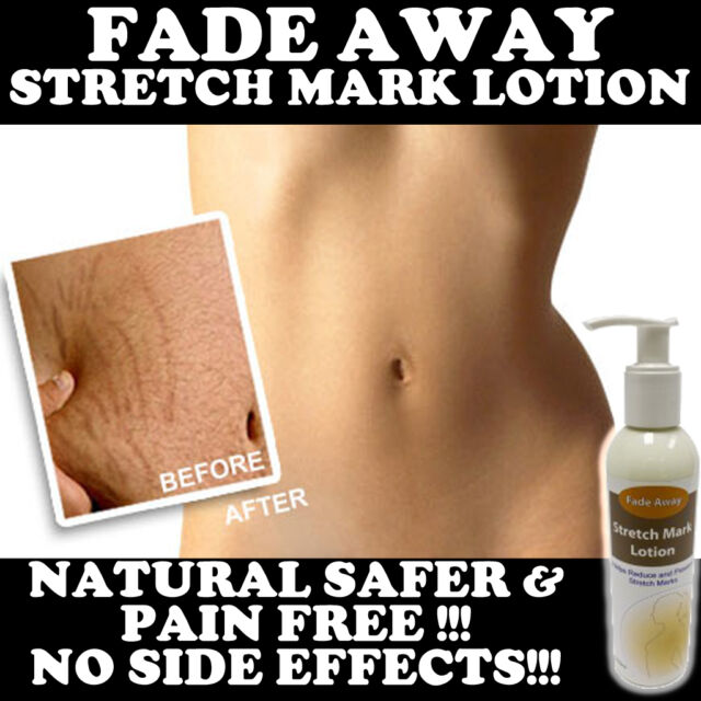 FADE AWAY STRETCH MARK LOTION CREAM MAX STRENGTH REMOVES STRETCH MARKS