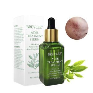 BREYLEE-Acne-Treatment-Serum-Facial-Essence-Anti-Acne-Scar-Removal-Cream-Face-B6