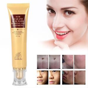 30g-Akne-Narbe-Entfernen-Creme-Haut-Reparatur-Gesichtscreme-Akne-Flecken-Unisex