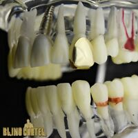 Real 10k Gold Tooth Single Cap Grillz Plain Canine Teeth Grill W/ Mold Kit