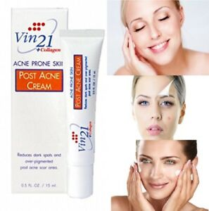 Details about Vin21 Post Acne Cream Reduce acne, dark spots, Scar and Make  moist & Pink skin