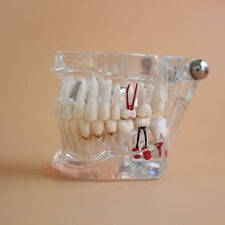 Dental Implant Disease Teeth Model with Restoration & Bridge Maryland CE PII