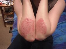 Scaly Skin Salve Psoriasis/Eczema Help All Natural Hand Made Non-greasy