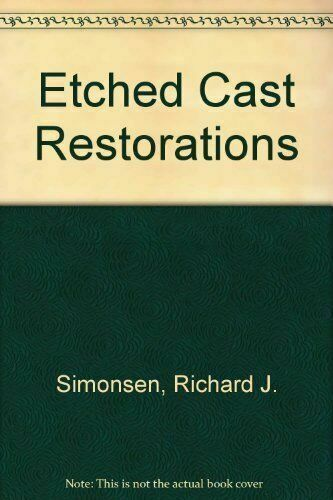 Etched Cast Restorations: Clinical and Laboratory Techniques, Simonsen, Richard