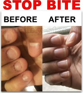 Growing Out Healthy Nails After Years of Biting | ThriftyFun