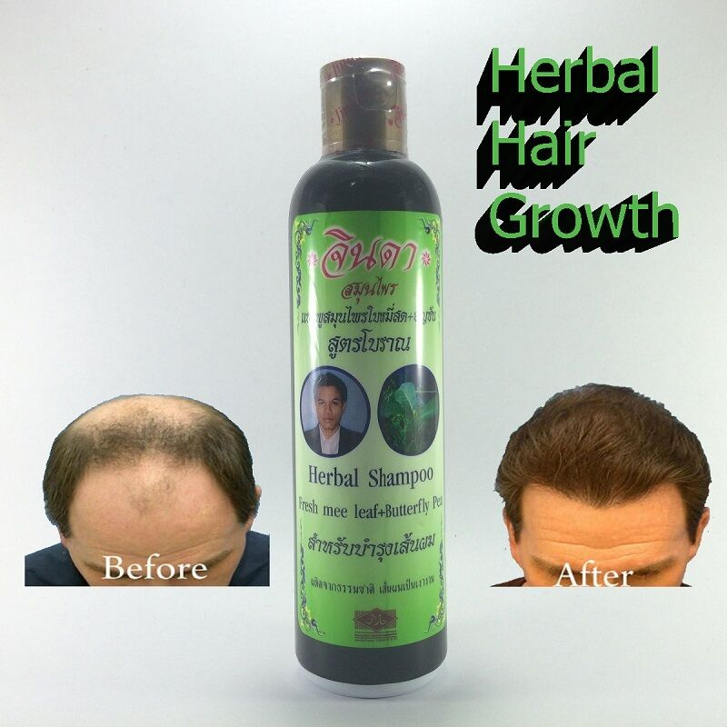 Natural Herbal Shampoo Hair Loss