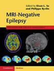 MRI - Negative Epilepsy: Evaluation and Surgical Management by Cambridge University Press (Hardback, 2015)