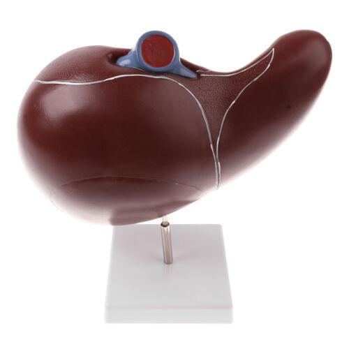grossissement 1.5x modèle anatomique du foie humain pour l/'enseignement