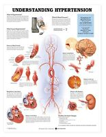 Understanding Hypertension Anatomy Poster Anatomical Chart Company