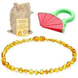 Raw-Baltic-Amber-Teething-Necklace-for-Babies-Honey-Anti-Flammatory-Droo