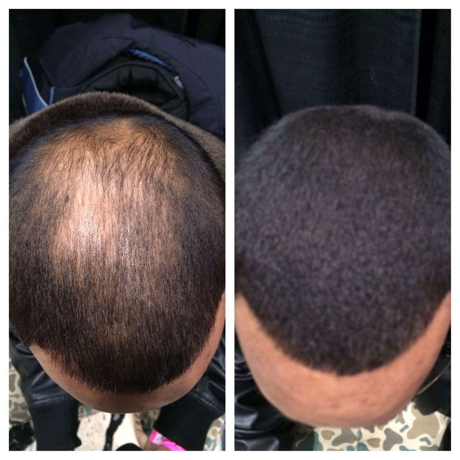 Hair Illusion Hair Fibers Extensions For Balding Thinning Hair Black