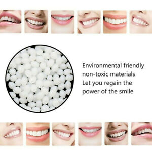 100g-Temporary-Tooth-Filling-Material-Temp-Replace-Missing-Teeth-Repair-De-PGV