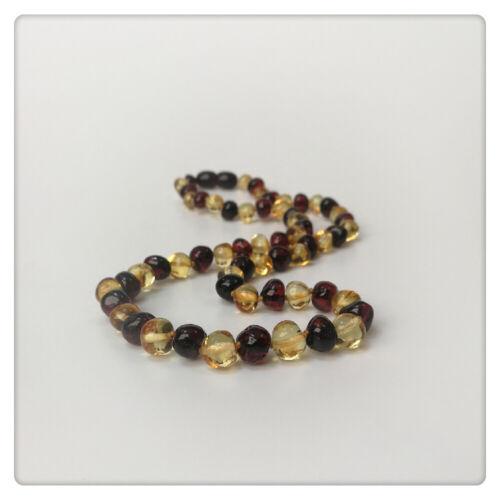 Baltic Amber Baby Necklace Lemon //Cheery