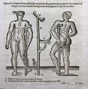 Protesi Di Ambrose Coronament Gloria 1614 Chirurgia Ortopedico Medicina Quadri