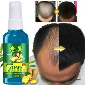 Soin-liquide-de-perte-de-cheveux-de-gingembre-d-039-essence-de-croissance-cheveux