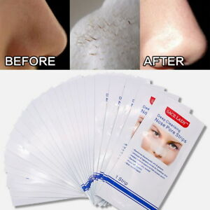 Details about New Unisex Nose Mask Removing Blackheads White Heads And  Shrinking Pores 10Pcs