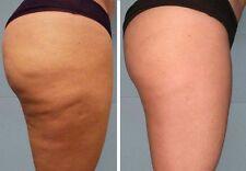 Armesso No-Needle Mesotherapy - Anti-Cellulite-