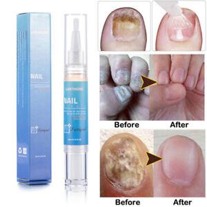 Solution-Anti-Fungus-Infection-Nail-Bright-Pen-Fungal-Treatment-Bio-Repair-4ml