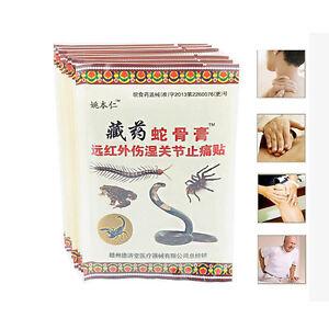 Chinesische-Kraeutermedizin-Joint-Arthritis-Rheuma-Schmerzlinderung-Pflaster-W2G2