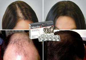 How to prevent hair thinning and loss