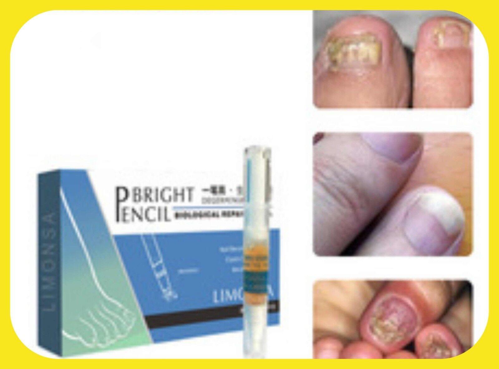 tratamiento de hongos en uñas de las manos