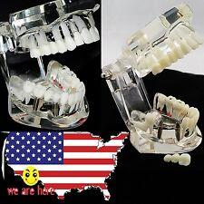 1pc USA SALE Dental Implant Disease Teeth Model with Restoration & Bridge