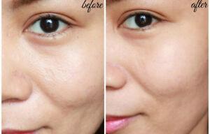 Anti Aging SkinCare Kit for Oily Skin Cleanser Toner Serum Moisturizer and More