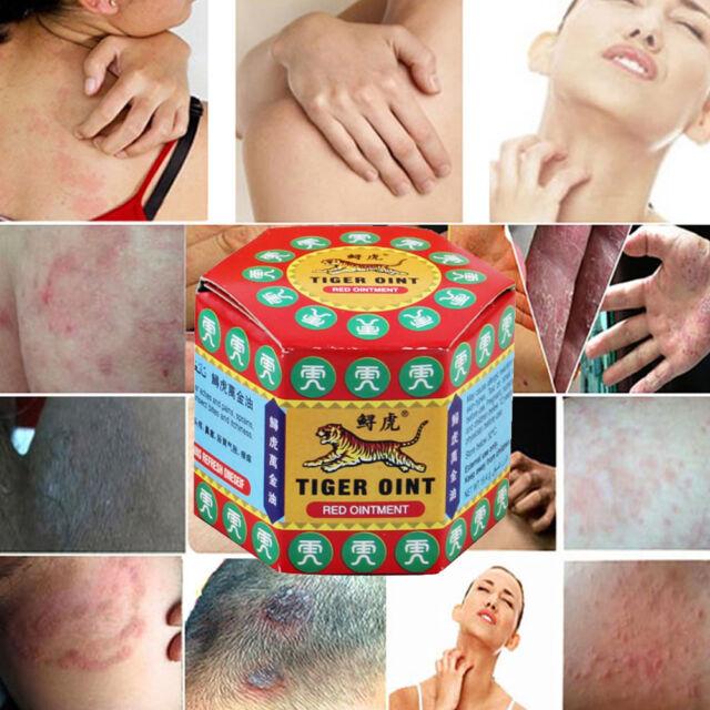 60g Analgetisch Aktive Creme Muskelschmerzen Relief Salbe Lipgloss Mückenstiche